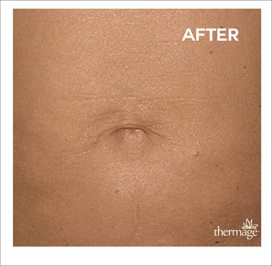 Thermage after